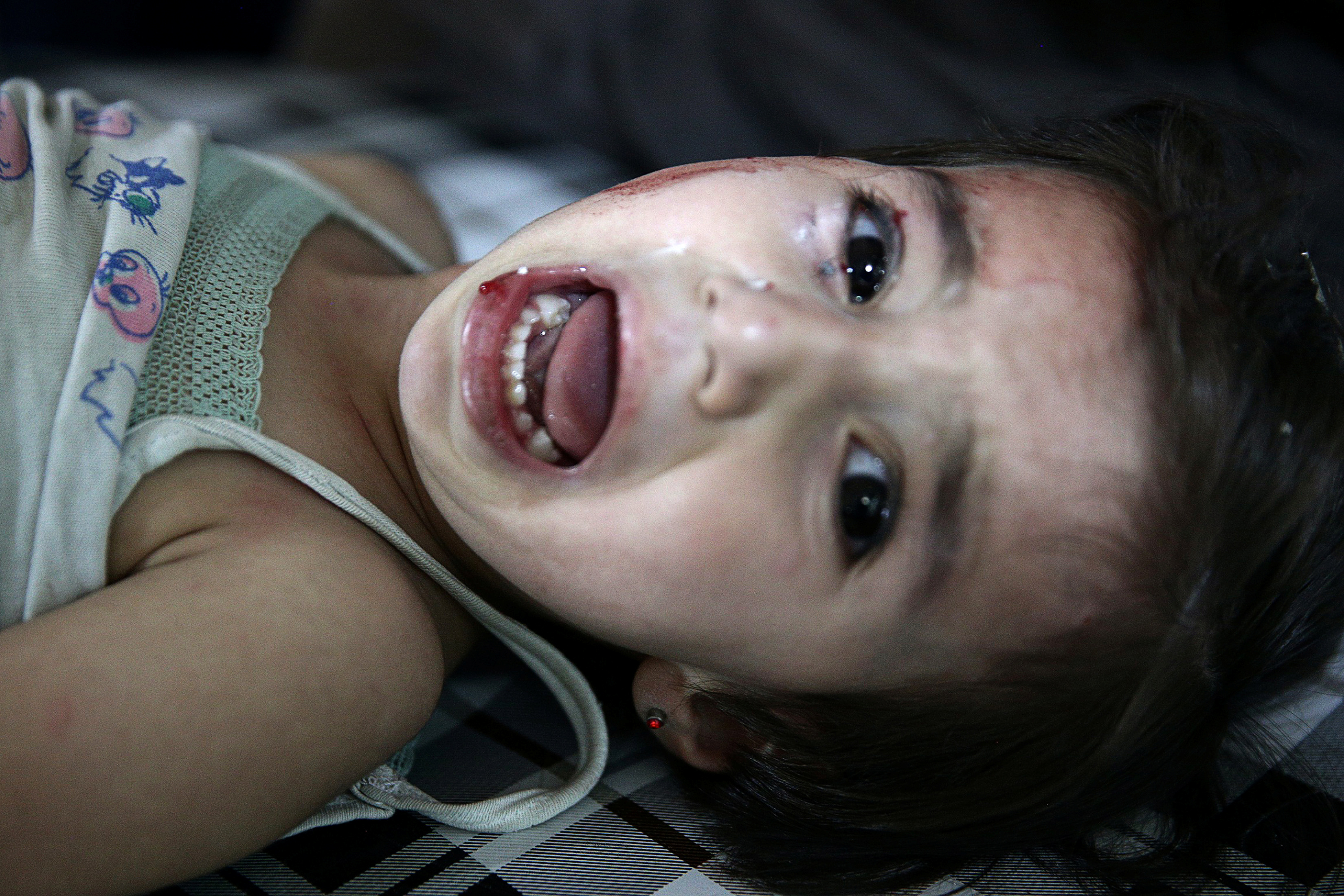 A child reacts inside a field hospital after airstrikes in the rebel held Douma neighbourhood of Damascus