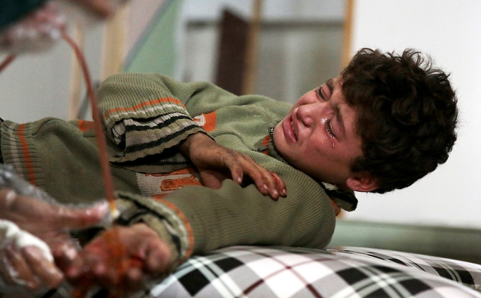 A wounded Syrian boy cries at a makeshif